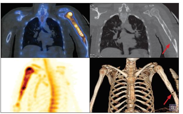 Na SPECT/LDCT hrudníku je zvýšená akumulace v hlavici a v diafýze levé pažní kosti s maximem v hlavici laterálně. Na LDCT je zobrazena zlomenina v distální polovině diafýzy levé pažní kosti (označeno šipkou).