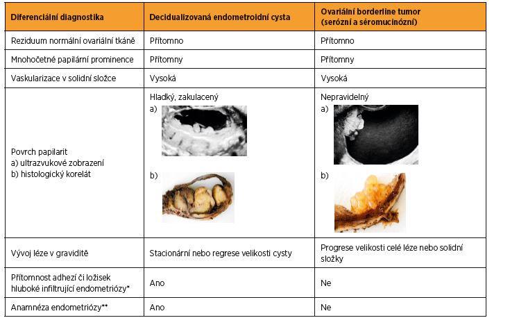 Charakteristiky odlišující u těhotných žen decidualizované endometroidní cysty od ovariálních borderline tumorů
