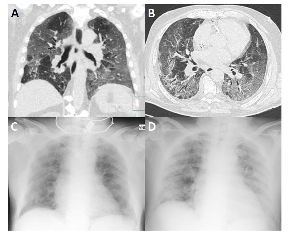 """HRCT hrudníku (A, B) ukazuje rozsáhlé oblasti vyšší denzity typu """"mléčného skla"""" (ground glass opacities) se zesílením interlobulárních sept v parenchymu obou plicních křídel s relativním ušetřením centrální části plic. V dolních lalocích jsou zachyceny bronchiektázie (B). Na RTG (C, D) je patrná snížená transparence především v periferní části obou plicních křídel."""