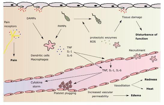 Patofyziologie lokální zánětlivé reakce a její hlavní znaky: bolest, zarudnutí, zvýšená teplota, otok a porucha funkce (uvedeny tučně). DAMPs: damage - associated molecular patterns (molekulární vzorce asociované s poškozením); PAMPs: pathogen-associatied molecular patterns (molekulární vzorce asociované s patogeny); ROS: reactive oxygen species (reaktivní formy kyslíku). Podle M.L.Varela et al. Inflammation 2018