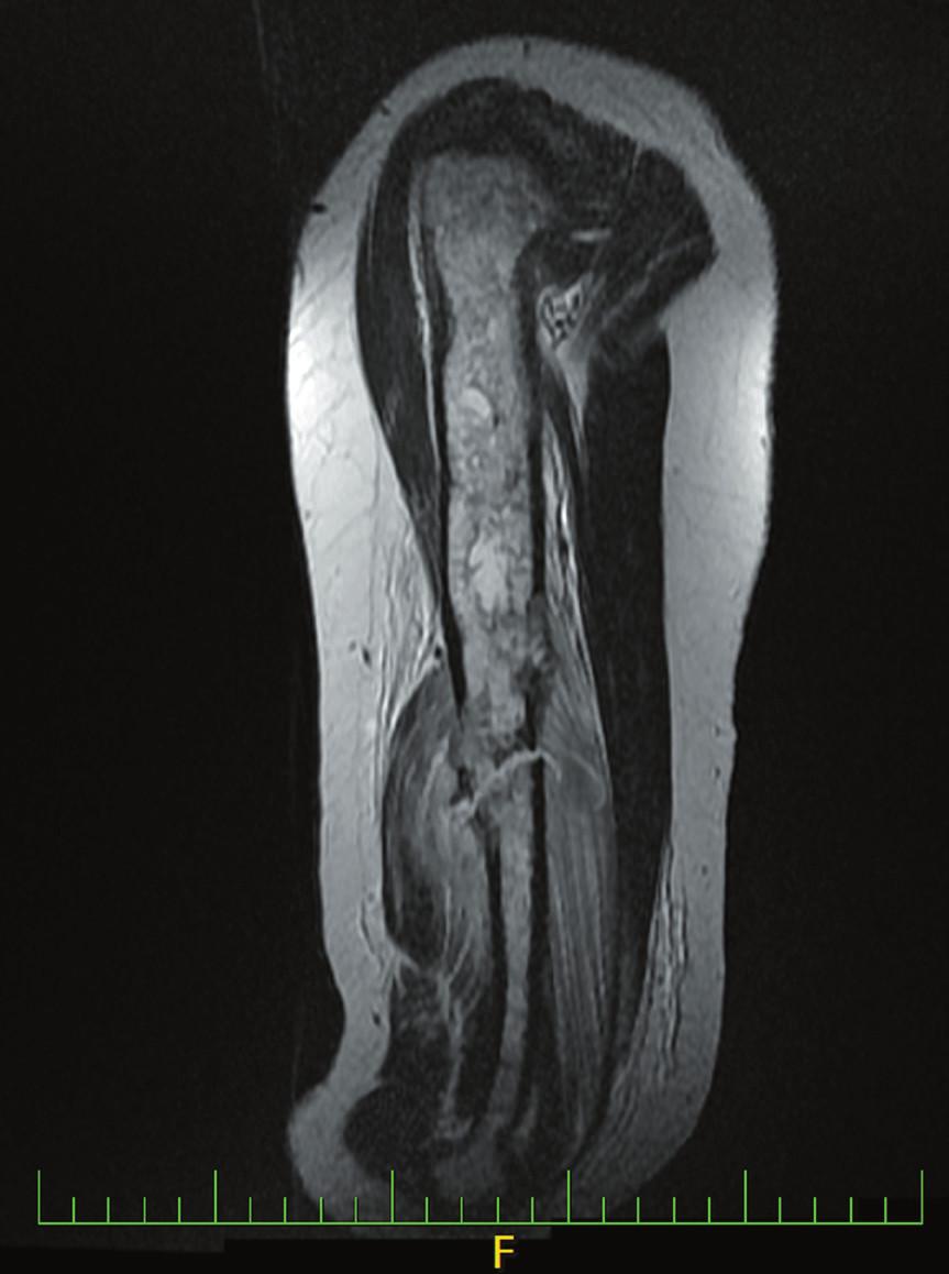 Na MR byl popsán patologický signál dřeně prakticky celého levého humeru s nepravidelným ztenčením kortikalis, distálně ložiskového charakteru. Ve střední části diafýzy byly popsány místy patrné úplné defekty kortikalis s menší měkkotkáňovou složkou kortikálně.