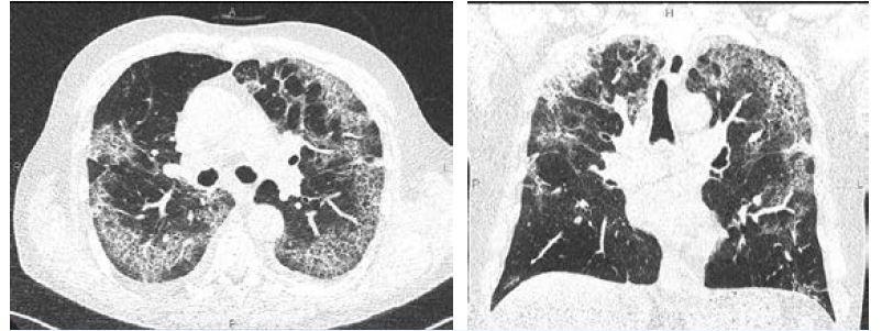 Obr. 10 a 11 CT vyšetření hrudníku u 67letého pacienta sCOVID-19 (13. den trvání obtíží): četné neostře ohraničené okrsky opacit charakteru mléčného skla a crazy paving vobou plicích, již s převahou trakčních změn a retikulací, zcela drobné reziduální konsolidace v horním laloku vpravo
