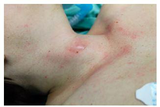 Obrázek 1a Zarudnutí a rezistence na pravé straně krku před kývačem