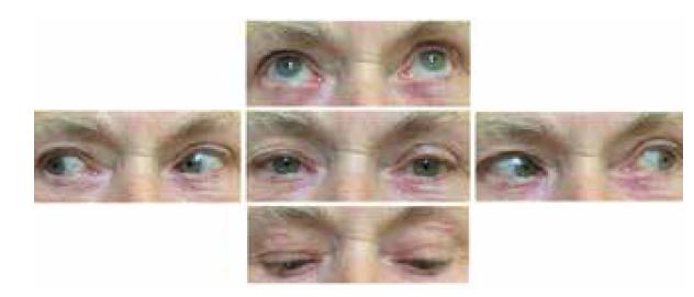 Úprava oftalmoplegie