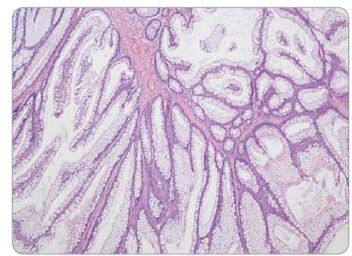 Peutzův-Jeghersův polyp tračníku – stromečkovitě větvené výběžky muscularis mucosae, epiteliální výstelka tvořena normálními enterocyty a pohárkovými buňkami sliznice colon, bez dysplazie.