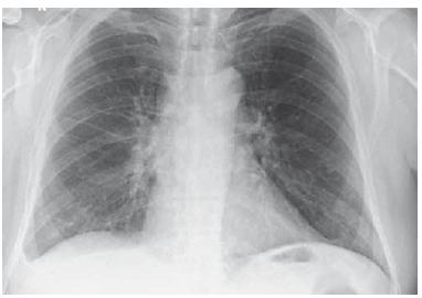 RTG plic – výpotek bazálně vpravo (6/2018).<br> Fig. 3. Lung X-ray – basal right fluidothorax (6/2018).