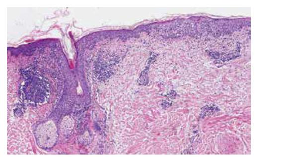 Histopatologický obraz (hematoxylin-eosin, 100krát)