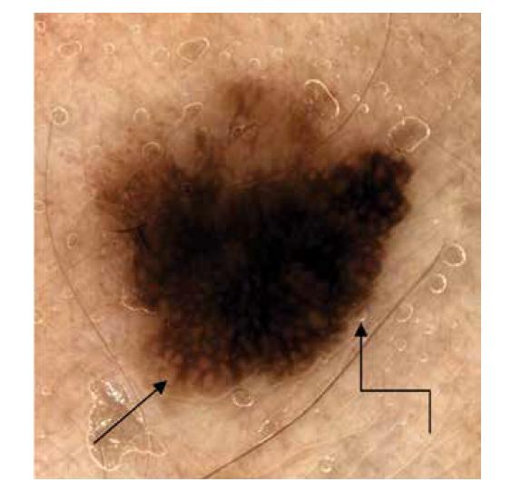 Obr. 5. Dermatoskopicky zřetelné dva barevné odstíny, akcentovaná síť (šipka) a abruptivní zakončení tmavší části léze (lomená šipka).