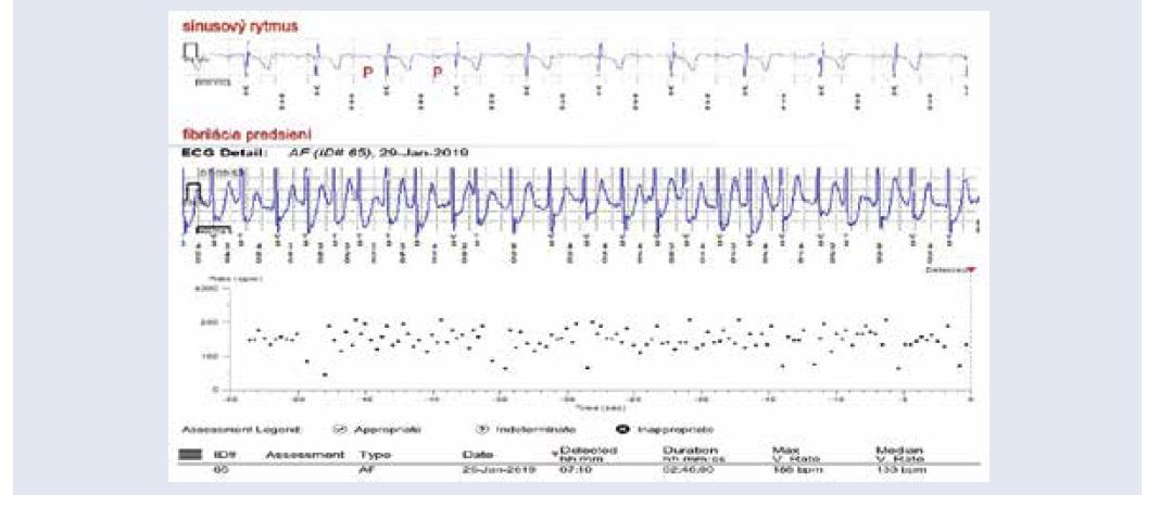 Záchyt paroxyzmu fibrilácie predsiení prostredníctvom implantovateľného slučkového záznamníka u pacienta po prekonaní ischemickej CMP. Výpis z diaľkového monitoringu. V hornej časti obrázka EKG so sínusovým rytmom, pod ním EKG so záchytom fibrilácie predsiení v trvaní 2 hodiny a 46 minút. V dolnej časti obrázka plotový diagram vyjadrujúci nepravidelnú a rýchlu komorovú aktivitu pri fibrilácii predsiení. <br> Z archívu autorky