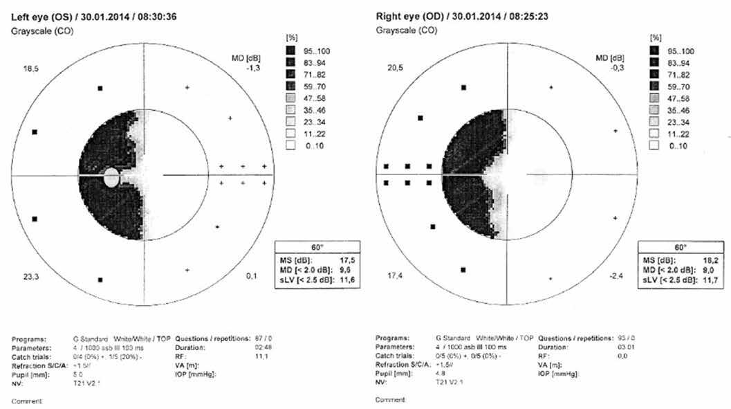 Levostranná homonymní hemianopie (počítačová statická perimetrie)