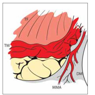 Nepřímá revaskularizace – encefalo- myo-synangióza. Direktní přiložení TM na mozek našitím do okénka DM se zachovanou MMA.<br> DM – dura mater; MMA – a. meningea media; TF – temporální fascie; TM – m. temporalis<br> Fig. 5. Indirect revascularization – encephalo- myo-synangiosis. TM is directly attached to the brain surface by suturing it into the DM window. MMA is preserved.<br> DM – dura mater; MMA – middle meningeal artery; TF – temporal fascia; TM – temporal muscle
