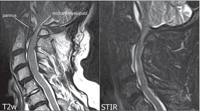 MR. (A) Sagitální T2 vážené skeny, tečkovaně vyznačen pannus; (B) sagitální STIR skeny s patrnou kompresí míchy s myelopatií. Skeny z 1,5T MR přístroj Toshiba Vantage ZGV (Tokio, Japonsko).<br> Fig. 1. MRI. (A) Sagittal T2 weighted image scans. Pannus marked with a dotted line; (B) sagittal STIR scans with visible spinal cord compression with myelopathy. Scans from 1.5T MRI apparatus Toshiba Vantage ZGV (Tokyo, Japan).