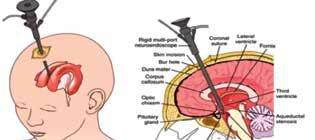 Princip endoskopické ventrikulocisternostomie třetí komory<br> Fig. 2: Endoscopic third ventriculostomy