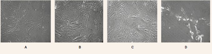 Figure 2 | Morphological and structural changes of ADMSCs observed under an inverse microscope (20x). A – control sample B – vitamin D3 0.5 mM C – magnesium 89 mM D – Vitamin C 50 mM