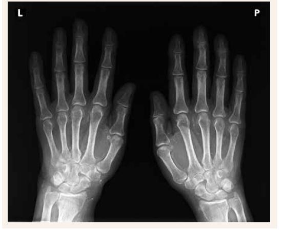 Nativní RTG - levá a pravá ruka s postižením tepen mediokalcinózou