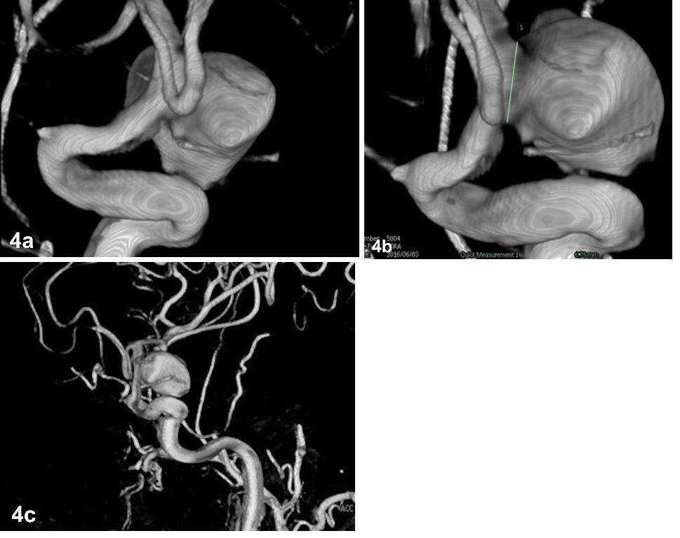Fig. 4a–c. Angiography 3D reconstructions showing a large anterior choroidal artery aneurysm.<br> Obr. 4a–c. 3D rekonstrukce angiografie ukazující velké aneurysma arteria choroidea anterior.