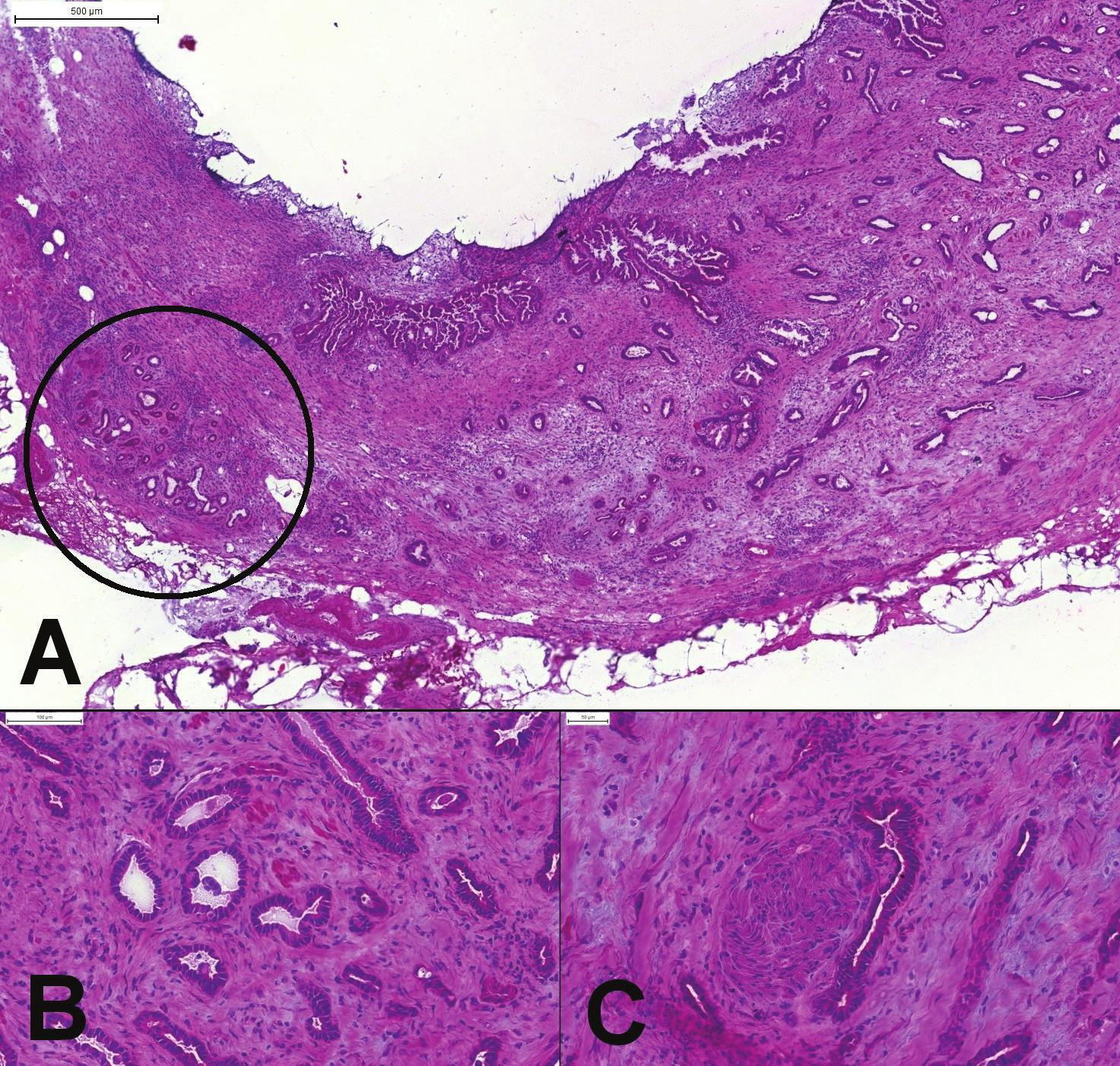 (A) Peroperačné vyšetrenie okraja choledochu. Náhodne usporiadané žliazky karcinómu (pravá časť obrázku), ktorý infiltruje celú stenu choledochu. Lobulárne usporiadané reziduálne peribiliárne žliazky (v krúžku). (B) Chaoticky usporiadané angulované žliazky karcinómu, cytologicky iba mierne atypické. (C) Perineurálna invázia.