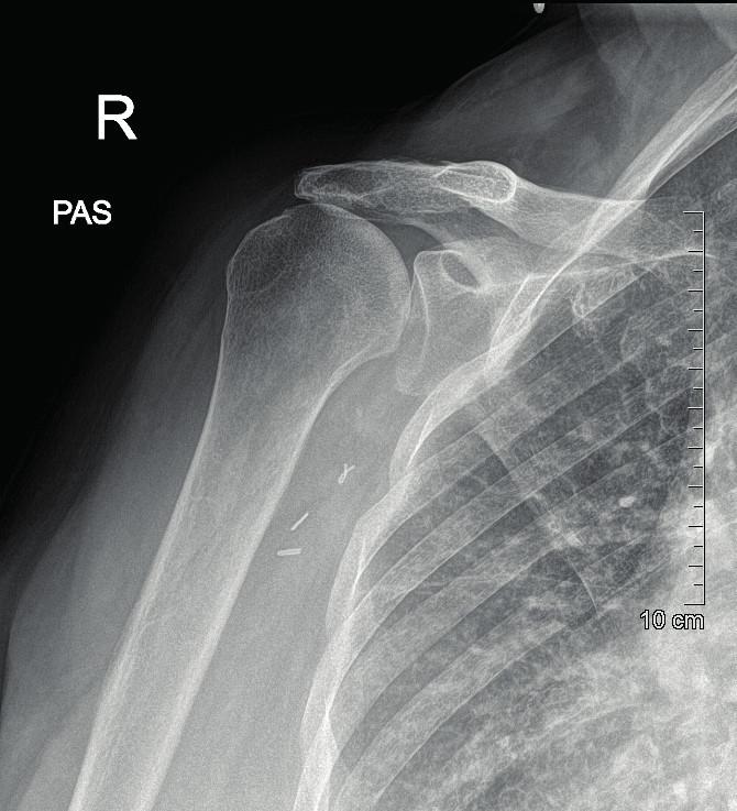 Na RTG viditelné artrotické změny a vyšší postavení hlavice pažní kosti