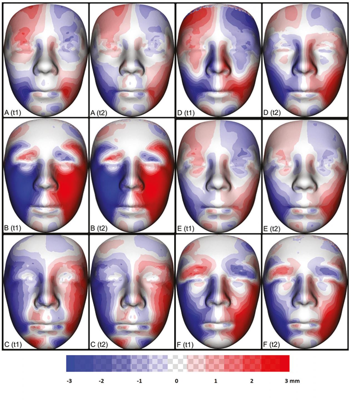 Porovnání individuální asymetrie obličeje šesti pacientů (5 ) s OAVS mezi jednotlivými vyšetřeními v čase t1 a t2 (A–F). Pro každého jedince byl vytvořen zrcadlový obraz. Následným zprůměrováním původního a zrcadlového obrazu byl vytvořen dokonale symetrický individuální obraz obličeje vyšetřovaného jedince. Odečtením vrcholů původního obrazu od obrazu symetrického byla získána a pomocí barevných map vizualizována individuální asymetrie. Oblasti pozitivních odchylek od ideální symetrie jsou vizualizovány červeně, oblasti negativních odchylek jsou vizualizovány modře. Největší rozdíly mezi pravou a levou stranou nacházíme v oblasti tváře na postižené straně od zevního koutku oka po ipsilaterální koutek rtu. Barevné mapy v čase t1 a t2 u daného jedince ukazují jen minimální změny.<br> Fig. 6 Comparison of individual facial asymmetry six patients (5 examinations at t1 and t2 (A–F). A mirror image was created for each individual. Subsequent averaging of the original and mirror images produced a perfectly symmetrical individual image of the pacient's face. By subtracting the peaks of the original image from the symmetric image, individual asymmetry was obtained and visualized using color maps. Areas of positive deviations from ideal symmetry are visualized in red, areas of negative deviations are visualized in blue. The biggest diff erences between the right and left sides are in the area of the face on the aff ected side from the outer corner of the eye to the ipsilateral corner of the lip. Color maps at time t1 and t2 for a given individual show only minimal changes.