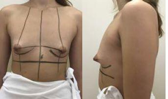 Obr. 5a Tubulární prsa – před operací<br> Obr. 5b Tubulární prsa, profil – před operací