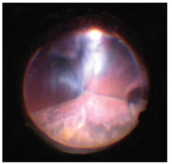 """Pohled na oční pozadí v průběhu postupného snižování výšky ablací, apozice protilehlých částí sítnice se pozvolna """"rozlepují"""", začíná být vidět reflex od očního pozadí. Světlo se odráží od sklivcových vláken, která jsou nahuštěna do retrolentálního prostoru. Snímek z peroperačního videa – z pohledu chirurga"""