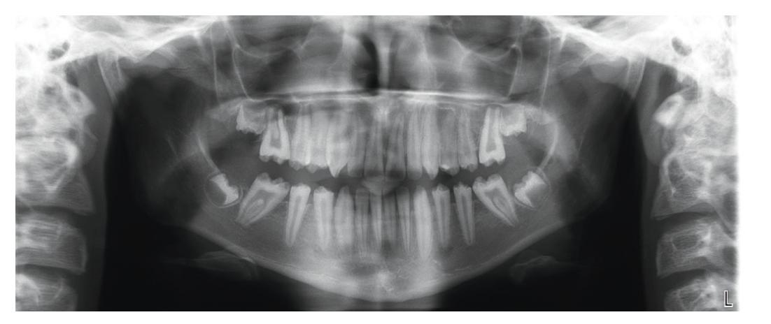 Přehledový panoramatický rentgenový snímek před započetím rekonstrukce<br> Fig. 2 Overview panoramic X-ray before the start of the reconstruction