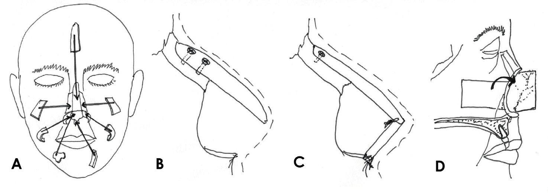 Rekonstukce opěrné struktury nosu: A) jednotlivé chrupavčité a kostěné součásti skeletu, B) konzolový štěp, C) L-štěp, D) kompozitní pivotální lalok. Zdroj: Kresba autora podle Thornton JF, Griffin, John R. Nasal Reconstruction. Sel Read Plast. Surg. 2006, 10(12):6-8.