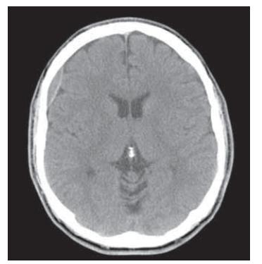 Fig. 5. Brain CT, axial scan. Pediatric patient with epidural hematoma – conservative therapy.<br> Obr. 5. CT mozku, axiální řez. Pediatrický pacient s epidurálním hematomem – konzervativní postup.