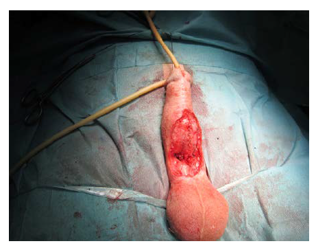 Dokončená sutura s tubulizací neouretry<br> Fig. 18. Completed suture with tubularization of the neourethra
