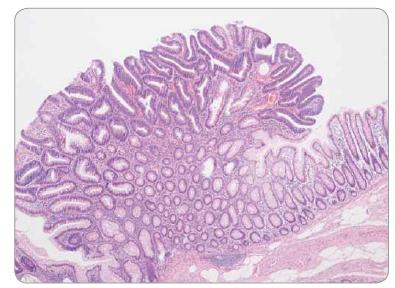 Tubulární adenom tračníku s low-grade epiteliální dysplazií – nevětvené tubuly.