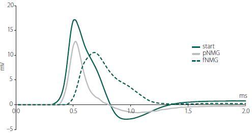 Sample compound action potential traces from a single nerve bundle for each group (start, pNMG, fNMG) recorded 30 mm away from the stimulating electrodes. fNMG – full N-methyl-D-glucamine replacement; NMG – N-methyl-D-glucamine; pNMG – partial N-methyl-D-glucamine replacement<br> Obr. 1. Křivky akčního potenciálu vzorové sloučeniny zachycené z jednoho nervového svazku v každé skupině (start, pNMG, fNMG) ve vzdálenosti 30 mm od stimulačních elektrod. fNMG – plné nahrazení N-methyl-D-glukaminu; NMG – N-methyl-D-glukamin; pNMG – částečné nahrazení N-methyl-D-glukaminu