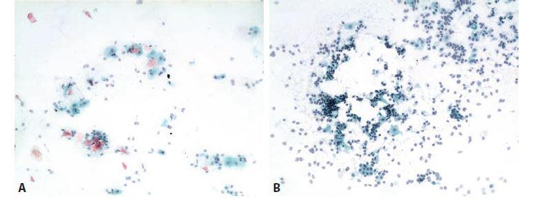 Ilustrační případ 3.<br> A: Cytogram dětské klidové fáze s příměsí intermediárních buněk. Bezjaderné eozinofilní skvamy jsou kontaminantní.<br> B: O tři roky později. Cytogram dětské klidové fáze. Thelarche praecox se rovněž normalizovala.