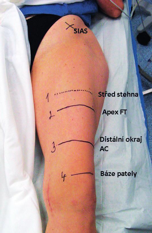 Levá dolní končetina, SIAS – spina iliaca anterior superior, popis jednotlivých úrovní stehna je v obrázku, FT femorální trojúhelník, AC adduktorový kanál