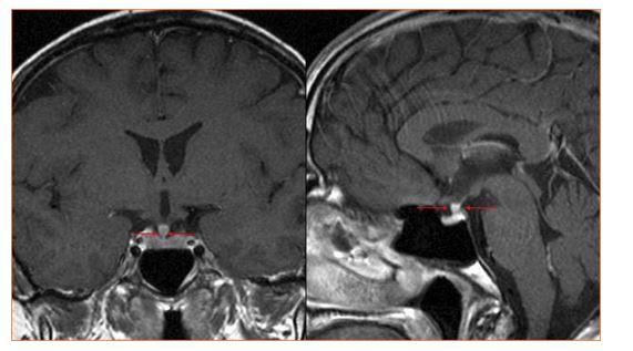 Infiltrace stopky hypofýzy u Erdheimovy Chesterovy nemoci