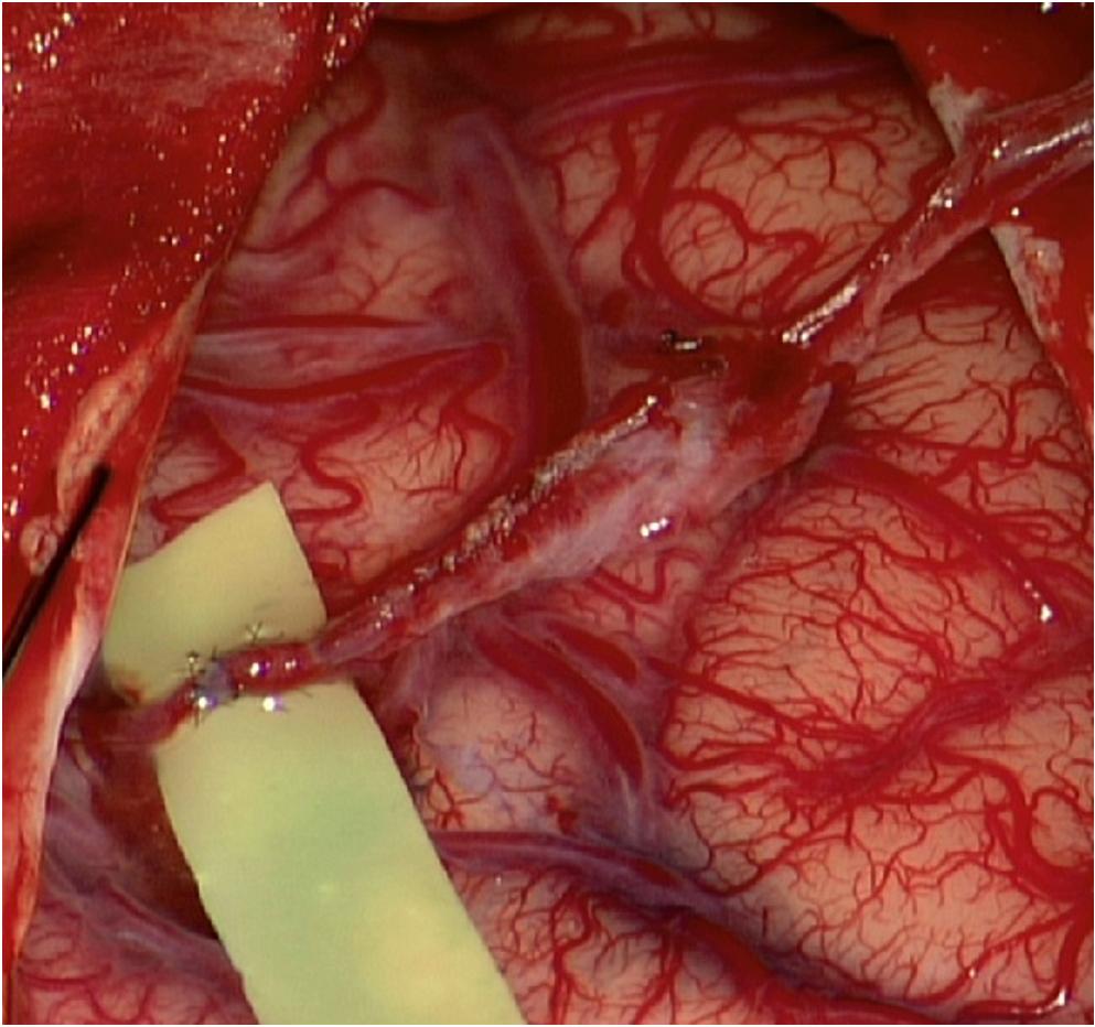 (a) Low-flow end-to-side bypass parietální větve a. temporalis spf. na temporální větev M4 vpravo. Technika jednotlivých stehů; (b) funkční bypass; (c) odstranění arachnoidey nad kortikálními tepnami před našitím temporálního svalu.<br> Fig. 3. (a) Low-flow end-to-side bypass STA(p)-M4(t). Interrupted suture technique; (b) functioning bypass; (c) arachnoidea cut over cortical arteries before temporalis muscle placement.