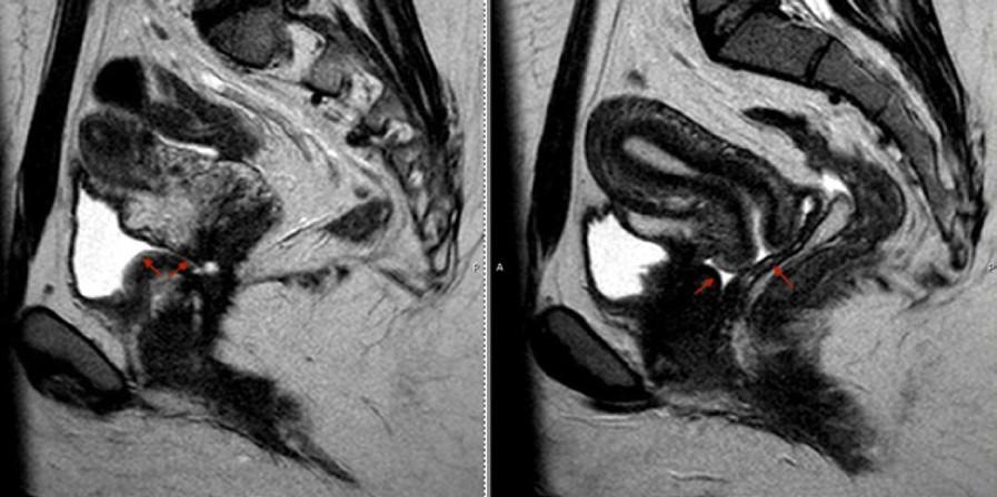 MRI pánve v sagitální projekci přehledně prokazuje přítomnost vezikovaginální píštěle a moči v pochvě (šipky)<br> Fig. 5. Sagittal view of pelvic MRI demonstrating vesicovaginal fistula and the presence of urine in the vagina (arrows)