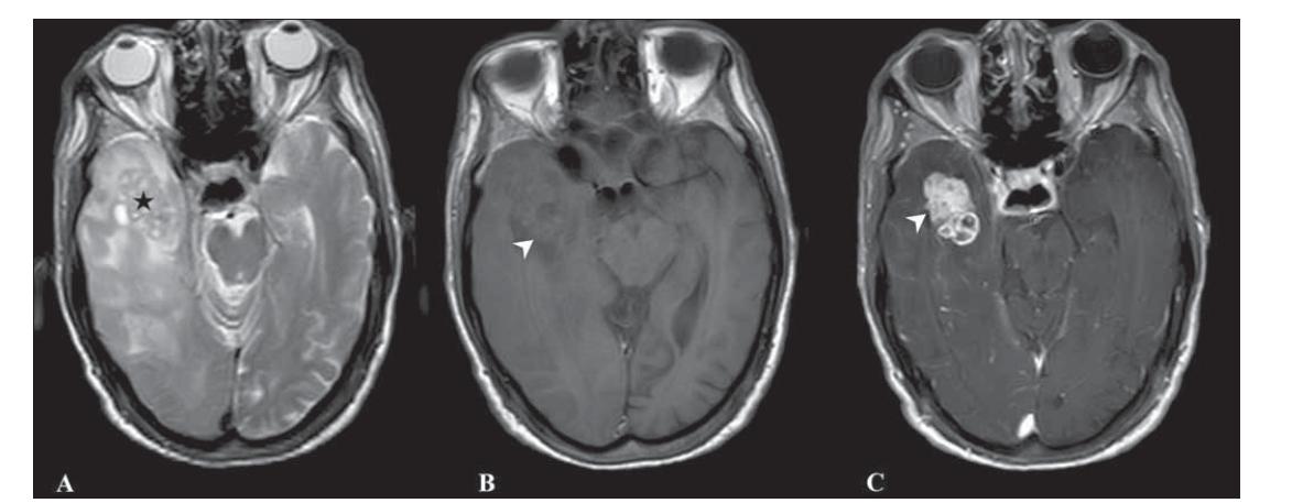 Fig. 2. T2-weighted (A), T1-weighted (B) and contrast-enhanced T1-weighted (C) images of a 78-year-old male patient with GSM show solid area hyperintensity on T2-WI (black star, A), isointensity on T1-WI (white arrow head, B) and homogeneous intense contrast enhancement (white arrow head, C).<br> Obr. 2. Vážené snímky T2 (A), T1 (B) a postkontrastní T1 (C) 78letého pacienta mužského pohlaví s GSM ukazují solidní oblast hyperintenzity na T2-váženém snímku (černá hvězdička, A), izointenzity na T1-váženém snímku (vršek bílé šipky, B) a homogenní intenzivní zvýšení kontrastu (vršek bílé šipky, C).