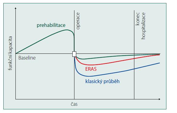 Schéma 1. Vývoj funkční rezervy chirurgického pacienta (volně podle Dean a spol. [14]). Zelená křivka ukazuje vývoj funkční rezervy pacienta, který před operačním výkonem podstoupil prehabilitaci. Červená křivka ukazuje vývoj funkční rezervy pacienta bez prehabilitace, ale se zavedeným programem ERAS. Modrá křivka ukazuje klasický vývoj funkční rezervy chirurgického pacienta