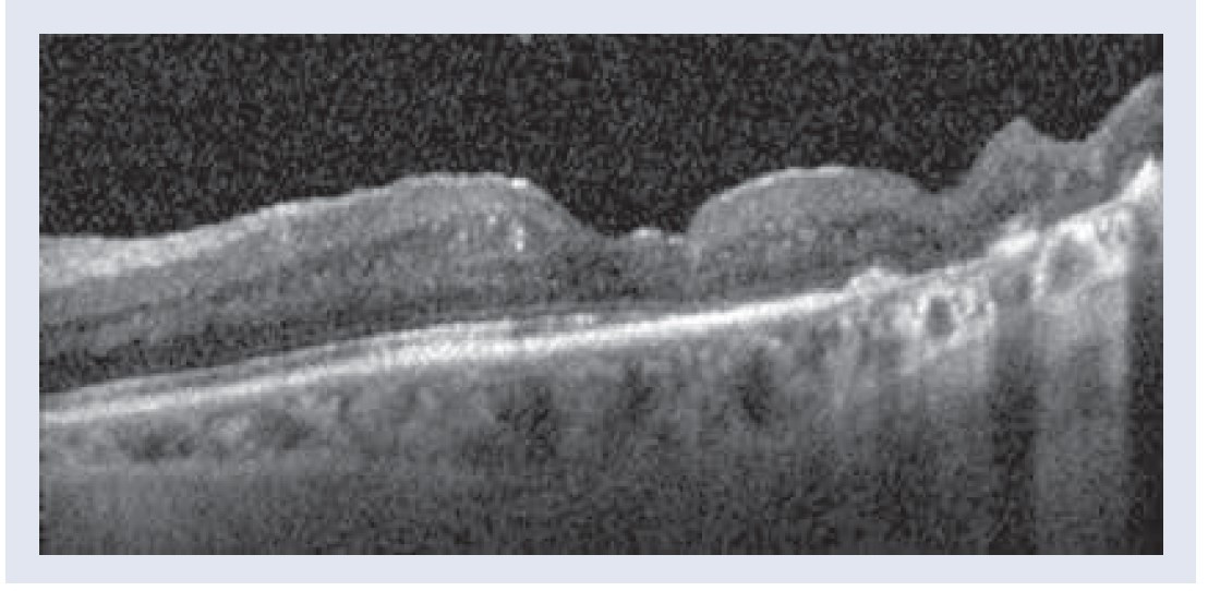 Obr. 3.2 | OCT obraz. Už 1 mesiac po aplikácii depotného dexametazónu pozorujeme vymiznutie edému sietnice, zlepšenie NKCOZ 20/50, 67 písmen a CST 150 μm. Snímky – archív autorky.
