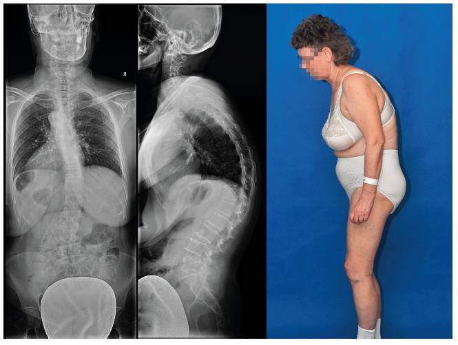 Rtg snímek páteře, vlevo na zadopředním degenerativní skolióza, uprostřed na bočním zvýrazněná hrudní kyfóza, vpravo klinický obraz s přední dekompenzací a ohnutím dopředu
