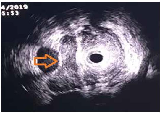 Intraduktální sonografie – ductus choledochus infiltrován tumorem, portální žíla bez infiltrace, oddělena tenkým pruhem hyperechogenní tkáně<br> Fig. 3. Intraductal ultrasonography – common bile duct infiltrated by the tumour, portal vein without infiltration, separated by a thin layer of hyperechogenic tissue