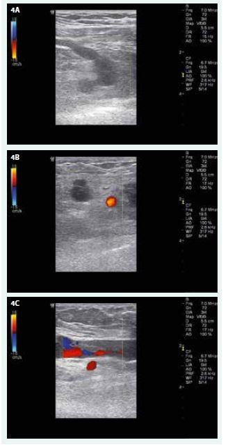 USG nález na žilách PHK před zahájením domácí antikoagulační léčby LMWH. A – úplný uzávěr v. subclavia a jejího přítoku (CFM, příčné zobrazení) B – úplný uzávěr v. axillaris, červeně se barví krevní průtok tepnou (CFM, příčné zobrazení) C – distální konec trombózy ve v. brachialis asi 10 cm nad loketní jamkou (CFM, podélné zobrazení)
