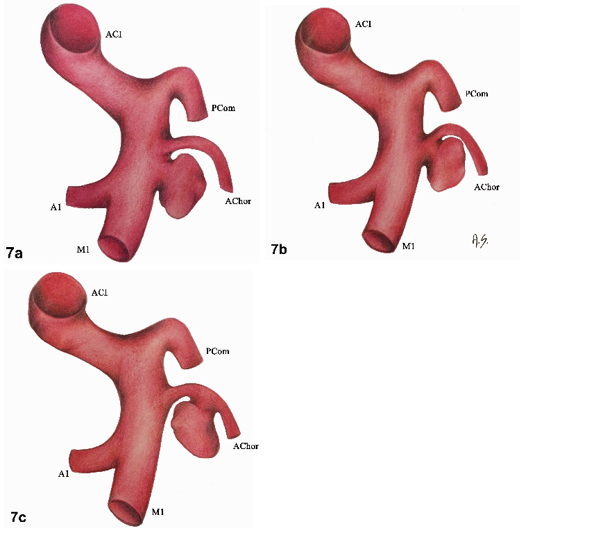 Fig. 7a–c. Three fundamental variations of anatomical relationships between aneurysm sac and anterior choroidal artery. Artery arising next to the neck of aneurysm (a), from the neck (b) and aneurysm coming from the main trunk of the artery (c).<br> Obr. 7a–c. Tři základní varianty vztahu mezi arteria choroidea anterior a vakem aneurysmatu. Arterie odstupující vedle krčku aneurysmatu (a), z krčku aneurysmatu (b) a vak výdutě vystupující z hlavního kmene arterie (c).