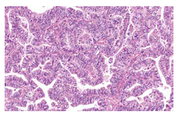 High grade serózní karcinom ovaria s tzv. SET rysy (v tomto případě pseudoendometroidní morfologie) (barvení HE, 200x).