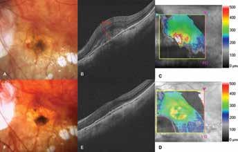 Choroidální neovaskularizace u pacienta s patologickou myopií<br> A. Foto fundu před zahájením léčby ranibizumabem. Ložisko neovaskulární membrány, v nasální části subretinální hemoragie B-C. HD-OCT před léčbou. Hyperreflektivní tkáň, prorůstající retinální pigmentový epitel. Edém neuroretiny s centrální<br> retinální tloušťkou 675 μm D-E. HD-OCT po léčbě. Pokles edému, náznak foveolární deprese<br> F. Foto fundu po léčbě. Ložisko se ohraničuje, hemoragie nejsou