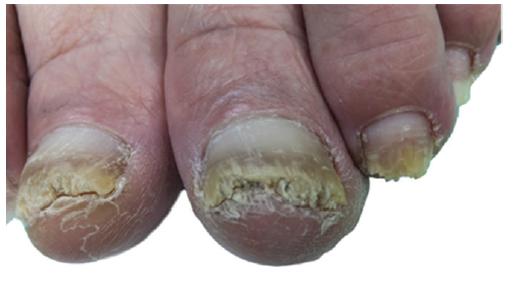 a. Palce obou dolních končetin před aplikací NTP: hyperkeratóza distálních částí nehtových plotének s drolením, zdravá proximální část ploténky cca 3–4 mm<br> Nehtové ploténky ostatních prstů distálně rovněž postiženy onychomykózou v různém rozsahu.