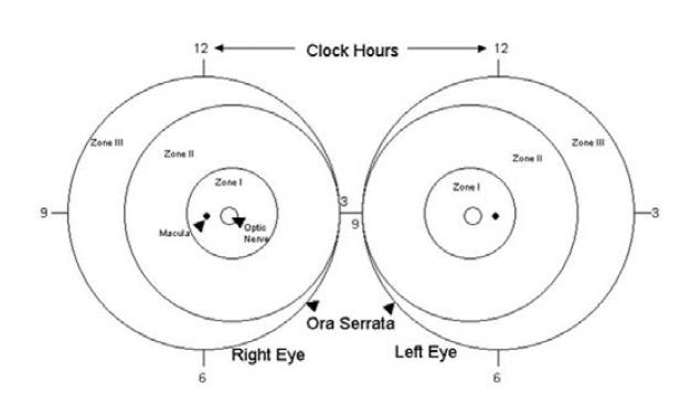 Klasifikace retinopatie nedonošených (ROP) podle lokalizace