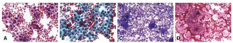Příklady nejběžnějších karcinóz coelomových dutin: Žena 73 let, serózní borderline tumor ovaria před rokem. Peritoneální výpotek.