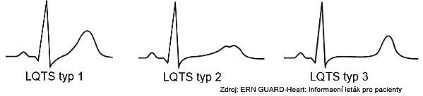 Syndrom dlouhého QT intervalu typ 1, 2 a3
