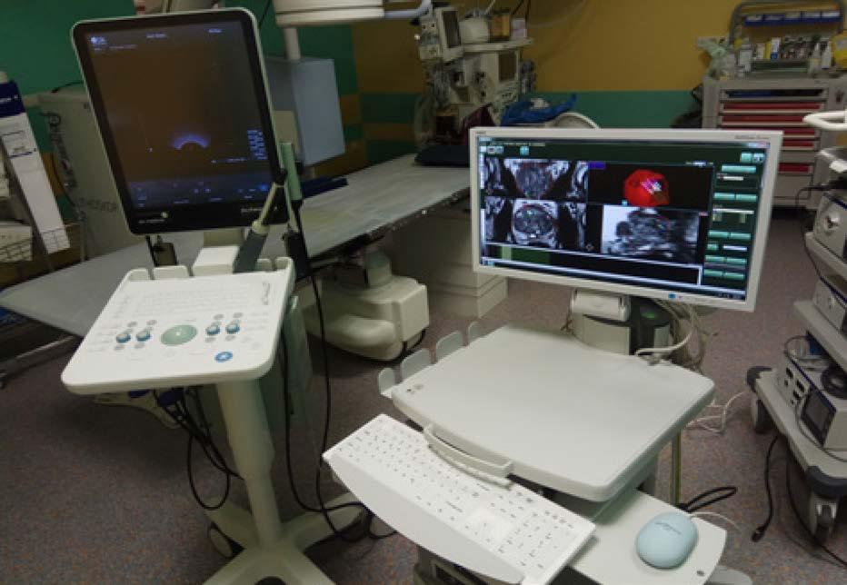 Ultrasonograf BK Flex Focus 800®™ vlevo; přístroj pro softwarovou fúzní biopsii Medcom®™ vpravo<br> Fig. 4. Ultrasonography BK Flex Focus 800®™ on the left; software fusion guided biopsy device by Medcom®™ on the right